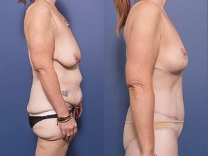 female body lift - before and after - patient 001C - side view