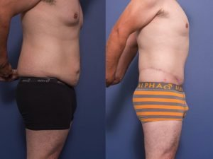 body lift before and after - patient 002C - side view