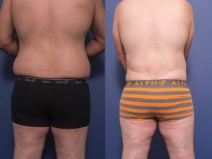 body lift - before and after - patient 002D - back view