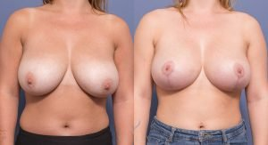breast reduction surgery before and after - image 012 - front view