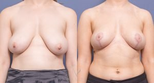 breast reduction surgery - before and afters - image 006 - front view