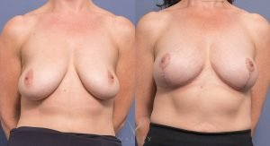 front bilateral breast reduction before and after - image 003 - front view