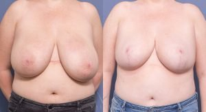 breast reduction before and after - image 018 - front view