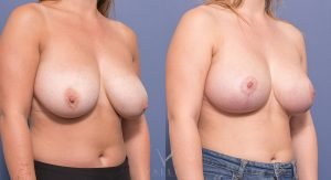 oblique breast reduction before and after - image 011 - 45 degree view