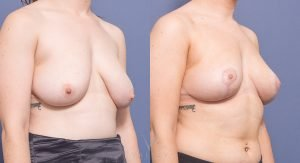 breast reduction surgery - before and after - image 005 - 45 degree view