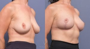 bilateral breast reduction before and after - image 002 - 45 degree view