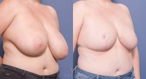 oblique - bilateral breast reduction before and after - image 017 - 45 degree view