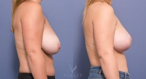 bilateral breast reduction - before and after gallery - image 010 - side view