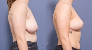 bilateral breast reduction surgery - before and after - image 004 - side view