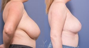 breast reduction - before & afters - image 016 - side view
