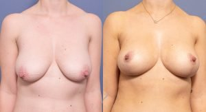 breast reduction surgery - patient before and after - image 024 - front view