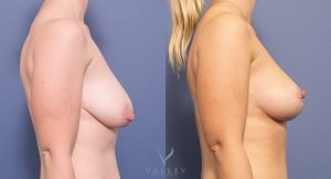 breast reduction before and after - image 022 - side view