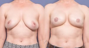 front view - breast reconstruction surgery before and after - patient 003