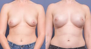 patient 004 - breast reconstruction procedure - before and after - front view