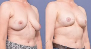 mp breast reconstruction patient 003 - image gallery - 45 degree view