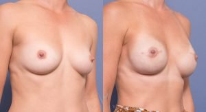 breast reconstruction surgery - Prophylactic mastectomies with immediate tissue expander reconstruction