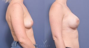 breast reconstruction - prophylactic mastectomies with immediate bilateral tissue expander reconstruction - side view