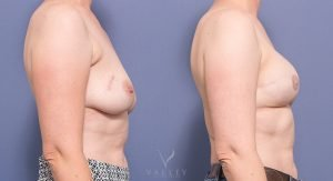 breast reconstruction - before and after - patient mp 03 - side view