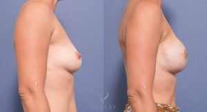 breast reconstruction surgery - before and after images - side view - valley plastic surgery