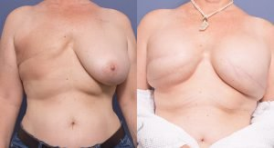unilateral breast reconstruction surgery - patient 005 - before and after - front view
