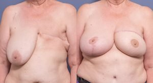 Front - Delayed L TRAM reconstruction with R breast reduction/lift in separate procedures