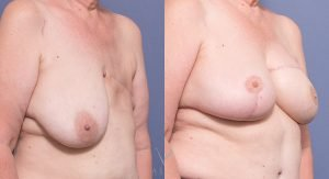 TRAM reconstruction with R breast reduction/lift in separate procedures