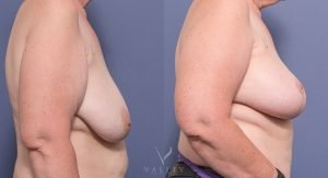 unilateral breast reduction and lift - before and after - image 025 - side view