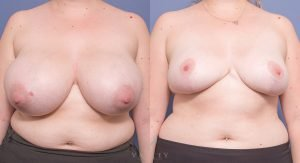 breast reduction - before and after gallery - image 015 - front view