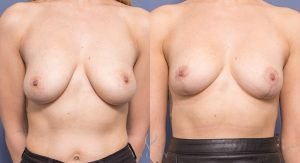 breast reduction surgery gallery - before and after - image 009 - front view