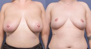 bilateral breast reduction before and after - image 021 - front view