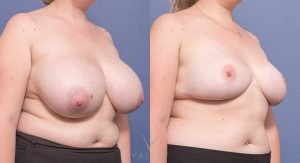breast reduction before and after - image 014 - side view