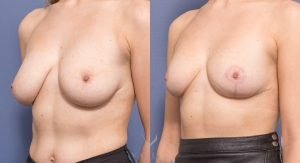 oblique - breast reduction before and after - image 008 - front view