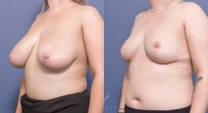 breast reduction before and after - image 020 - 45 degree view