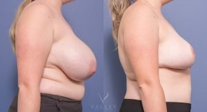 breast reduction gallery - before and after - image 013 - side view