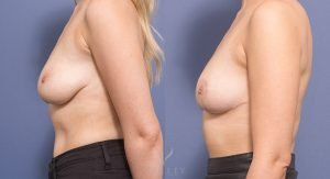 breast reduction - before and after gallery - image 007 - side view