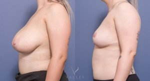 breast reduction before and after - image 019 - side view