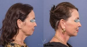 facelift before & afters - male patient 003 - side view