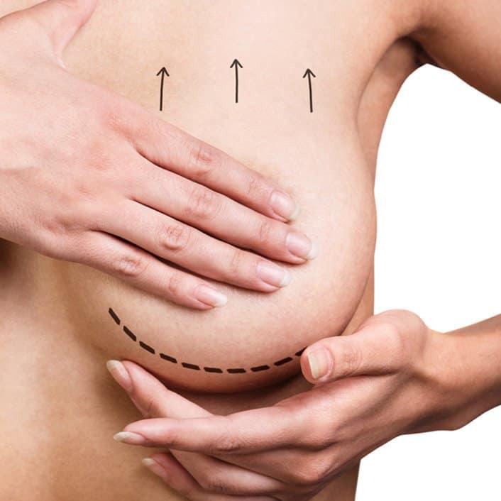 Breast lift at VPS, model image 01