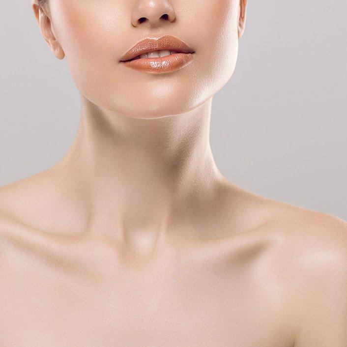 Chin surgery, VPS model 01