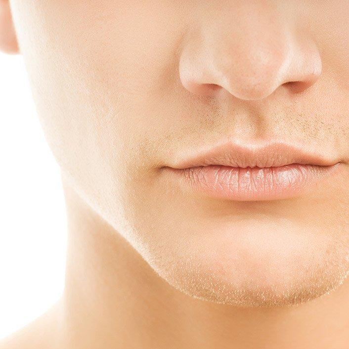facial implants model 01