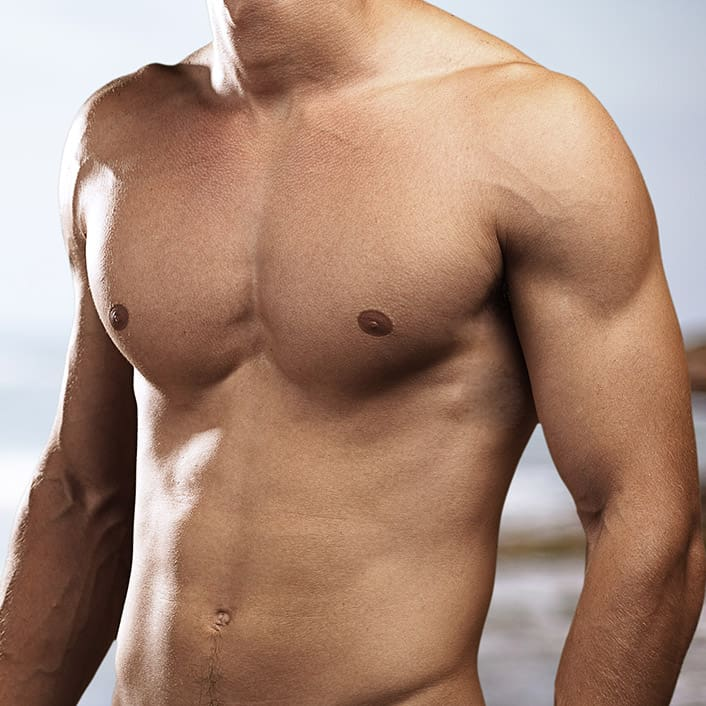 Male Breast Reduction at VPS, model image 01